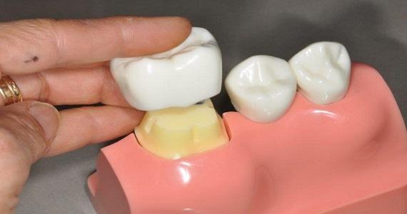 Riverside Dental Care Crowns