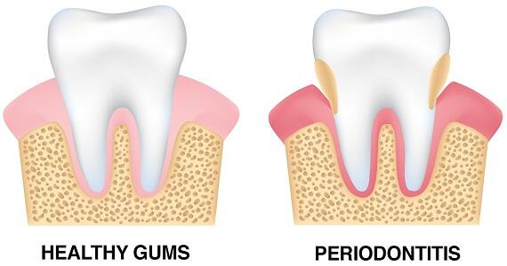 Riverside Dental Care Gum Disease