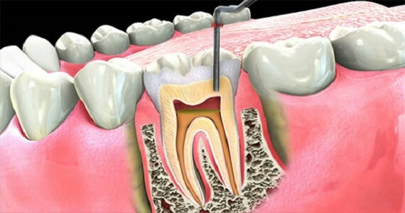 Riverside Dental Care Root Canal Fillings